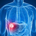 Avviso ai pazienti: gravi effetti indesiderati dall'amiodarone