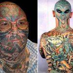 Cancellare un tatuaggio, operazione non sempre facile e dal risultato sicuro