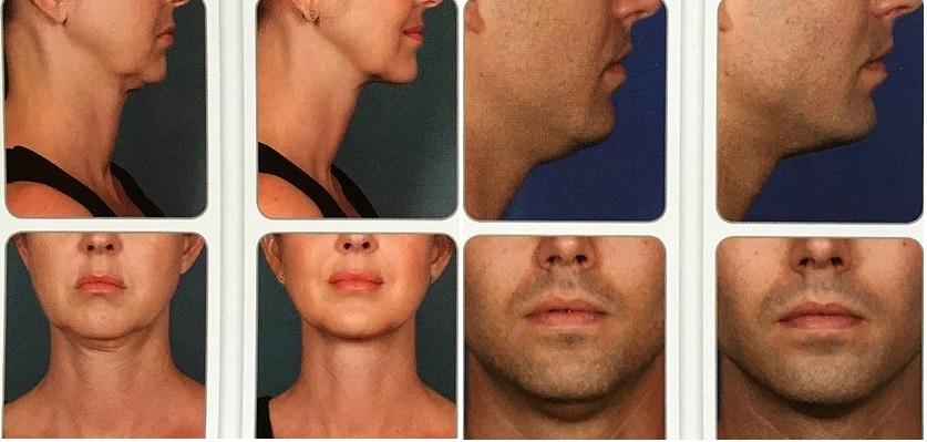iniezione di rimozione del grasso del collo
