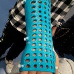 Fratture ossee nei bambini, esoscheletro in plastica al posto del gesso